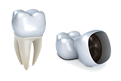 Dental Crowns | Cedar Crest Dental Center | Dr. Vondell | Lebanon, PA Dentist