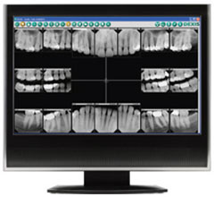 Digital Dental X-Rays | Dr. Vondell | Lebanon, PA Dentist